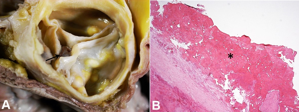 A- Gross view of the three-leaflet aortic valve showing calcific aortic              stenosis and vegetation (arrow) measuring 9 × 6 mm attached to the ventricular surface              of the one of the aortic cusps. Note the calcium nodules recovered by lipid deposits projecting              outwards to the aortic surface and the thickened aortic leaflets; B- Histopathology              of the vegetation (asterisk) disclosed fibrin with no inflammatory cells; the histochemical              search for bacteria and fungi was negative (B).