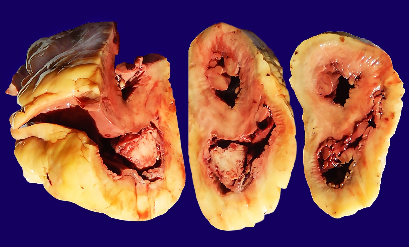 Gross view of multiple heart cross sections from the apex to the base showing the endocarditic                vegetation attached to the tricuspid valve, and partly filling the right ventricle and                right atrium.