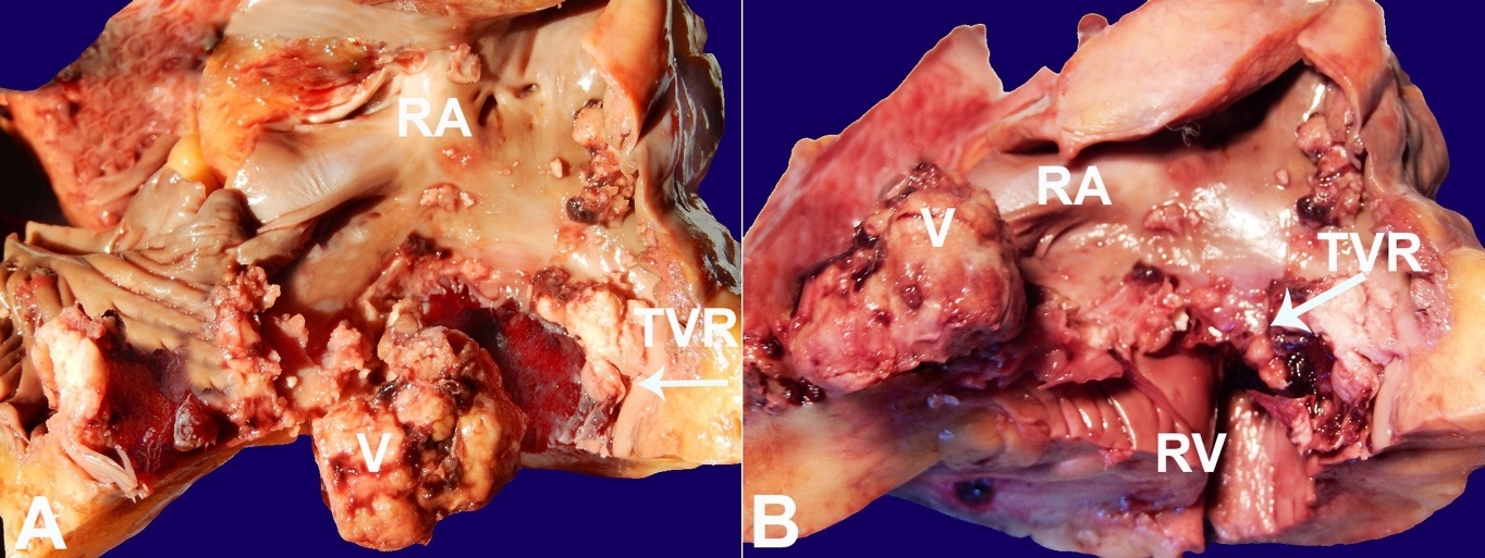 Gross examination of the heart, from the right atrium view, showing the nodular vegetation                arising from the tricuspid valve. A – The vegetation occupied                the whole valve cusp; B – After removal of the vegetation, the valve                cusp appeared completely destroyed. RA = right atrium; RV = right ventricle; TVR = tricuspid                valve ring; V = vegetation.