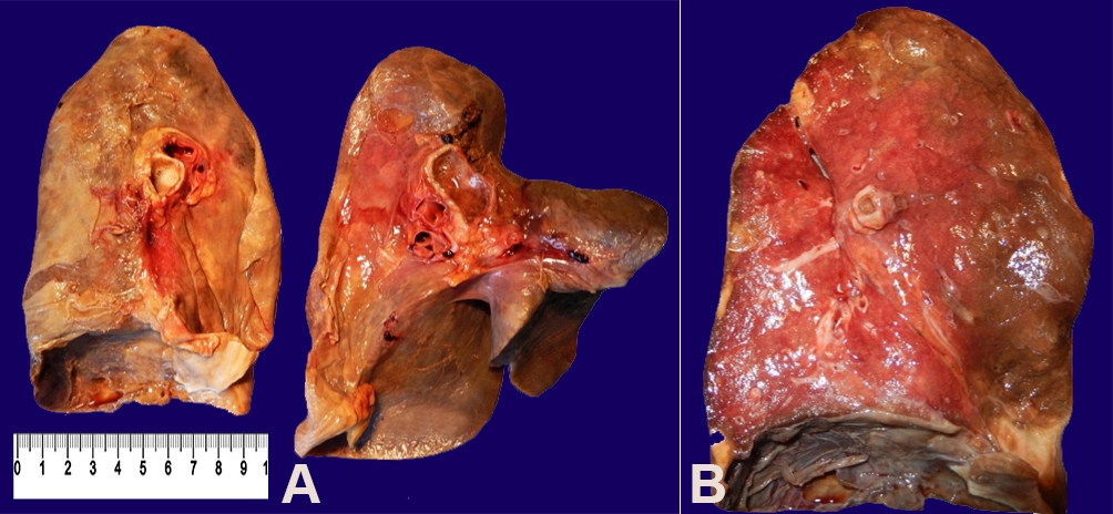 Gross findings of the lungs (A – Left and right lungs, medial vision;                B – Left lung, aspect to the cut section). The lungs appeared diffusely                boggy and hardened, with edema and different nodular areas of consolidation that were                white/yellow in color.