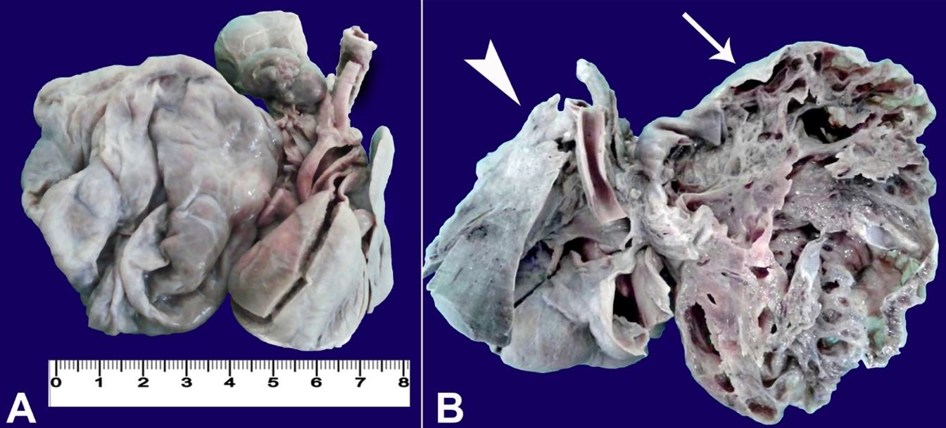 A – Front view of the thoracic organs after formalin fixation;              B – Posterior view of the thoracic organs. Note the right lung with numerous              contiguous cystic formations outlined by thin walls with honeycomb appearance (arrow)              and the immature left lung with the two lobes (arrowhead).