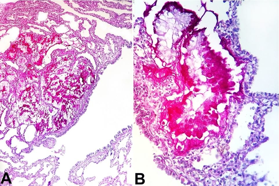 A – Photomicrograph of the right lung revealing clusters of mucinous              glands (PAS, 200X); and B – Presence of the goblet cells (PAS, 400X).