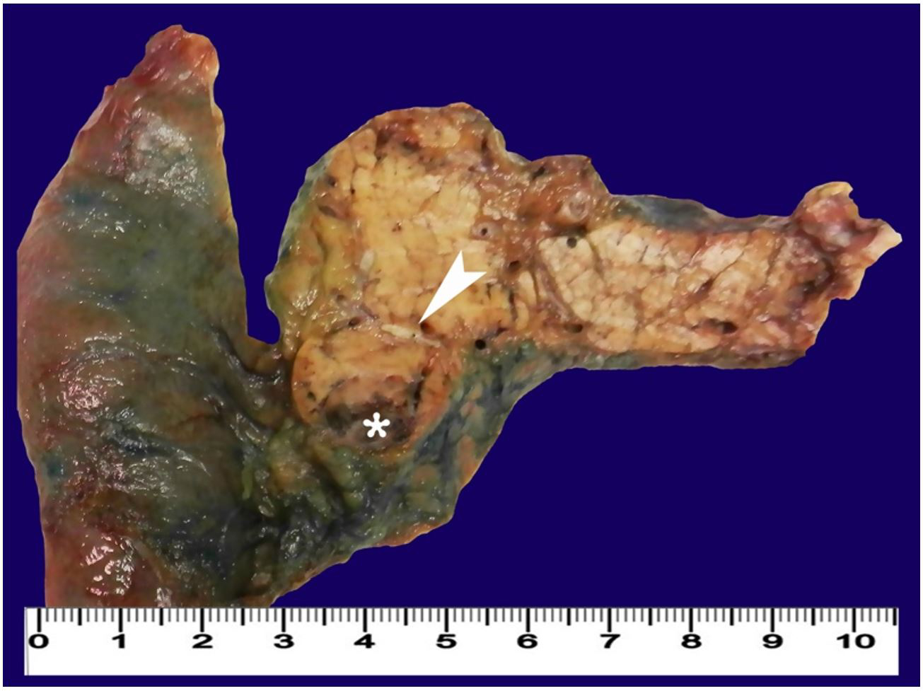 Gross view of the surgical specimen of cephalic duodenopancreactectomy showing a pancreatic nodule (arrowhead) with central cystic/necrotic changes (asterisk).