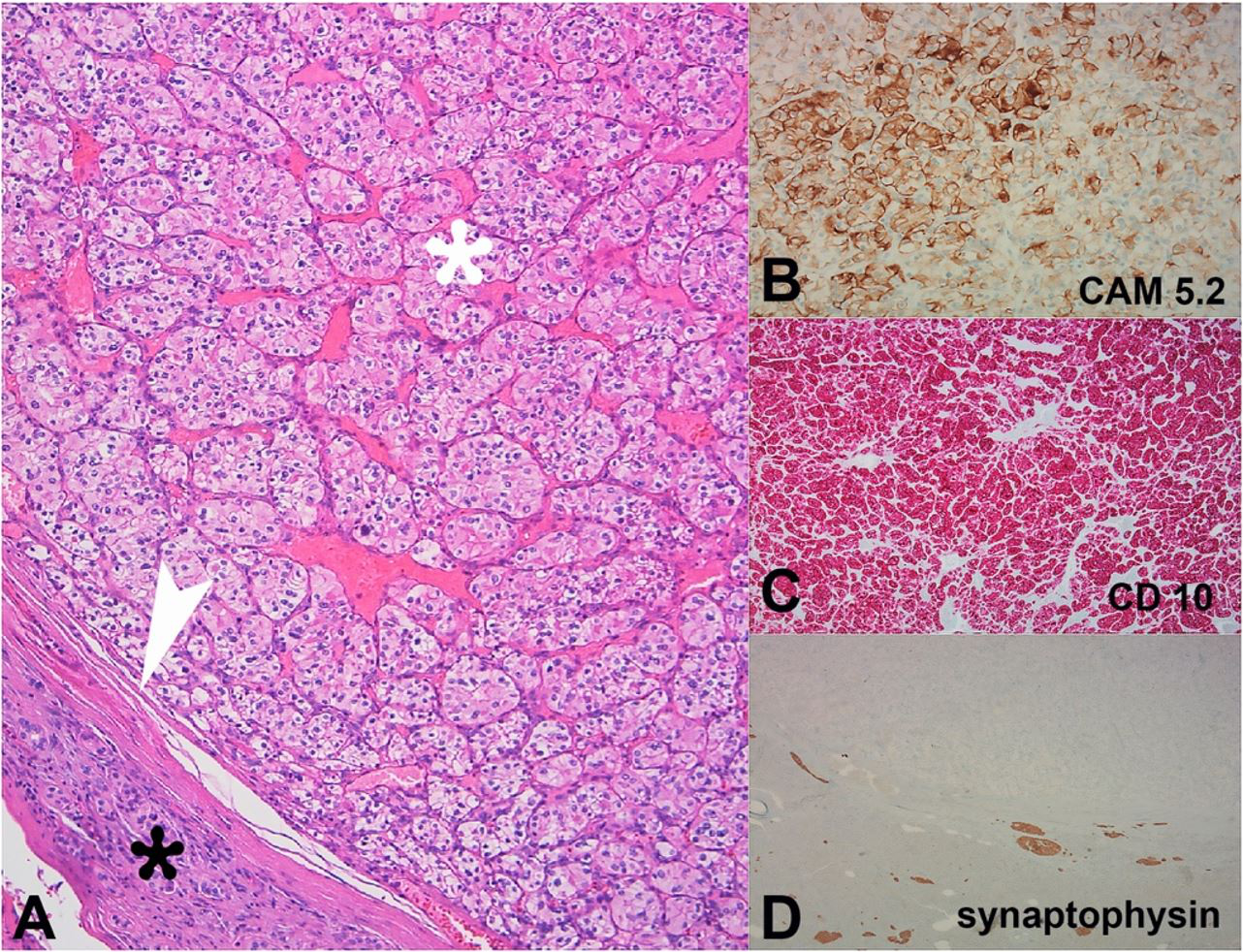 Photomicrography of the tumor. A – Alveolar growth of large polygonal cells with clear cytoplasm, uniform round nuclei, and inconspicuous nucleoli (white asterisk), surrounded by a thin fibrous capsule (arrowhead) and normal pancreatic tissue (black asterisk) (H&E, 100x); B–D – The immunohistochemical study shows positivity for CAM 5.2 and CD10, and negativity for synaptophysin.
