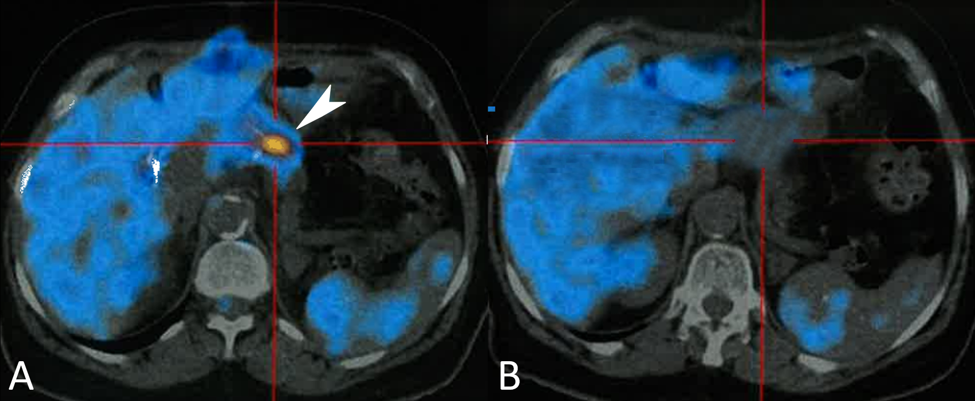 PET scan. A – Nodular hyperfixation area of FDG on the remaining parenchyma (white arrow); B – At 1 year and 4 months follow-up, the PET-CT scan showing no signs of disease relapse.