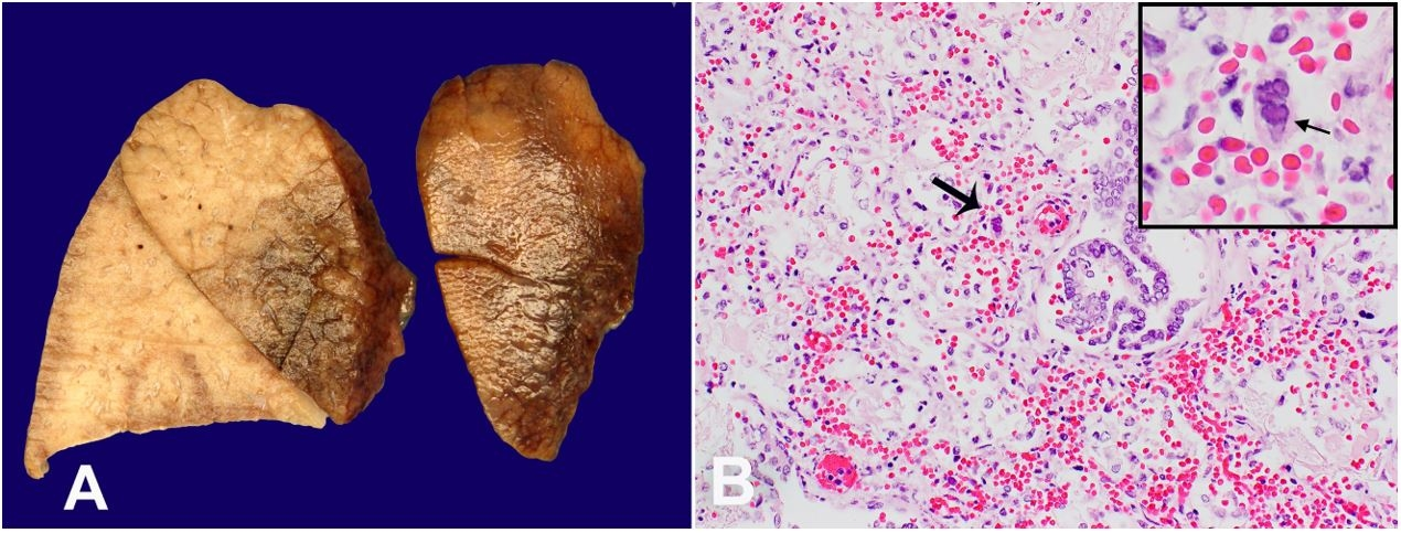 A – Macroscopic view of the lung showing hemorrhagic lobes; B – Microphotograph of the lung showing HSV-infected cell in the lung and multinucleated cell (arrow) with margination of chromatin and molding- Viral nuclear inclusion (H&E, 40 X). Inset shows the detail of the multinucleate cell (60X).