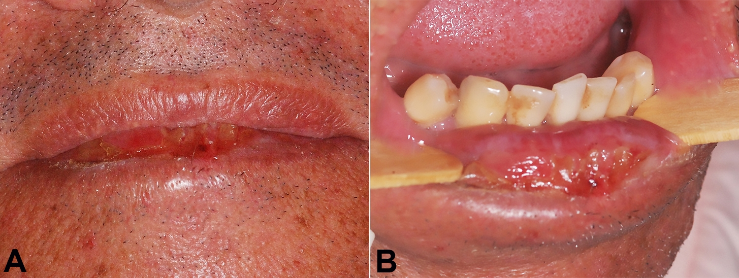 Clinical aspect of lips. A – Absence of upper lip changes; B – Well-marked ulcerated and crusted area on the lower lip.