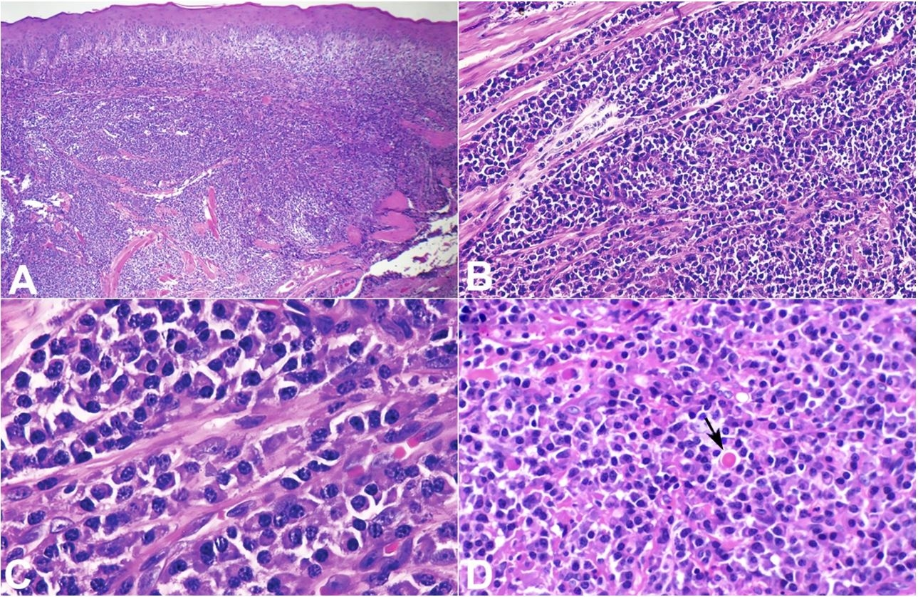 Photomicrograph of the biopsy specimen. A – Hyperplastic and parakeratinized stratified squamous epithelium with dense infiltrate of plasma cells in the lamina propria (Hematoxylin-eosin, 20X); B – Presence of a band-like infiltrate of plasma cells. (Hematoxylin-eosin, 100X); C – Monomorphic mature plasma cells. (Hematoxylin-eosin, 400X); D – Presence of Russel body (arrow) (Hematoxylin-eosin, 200X).