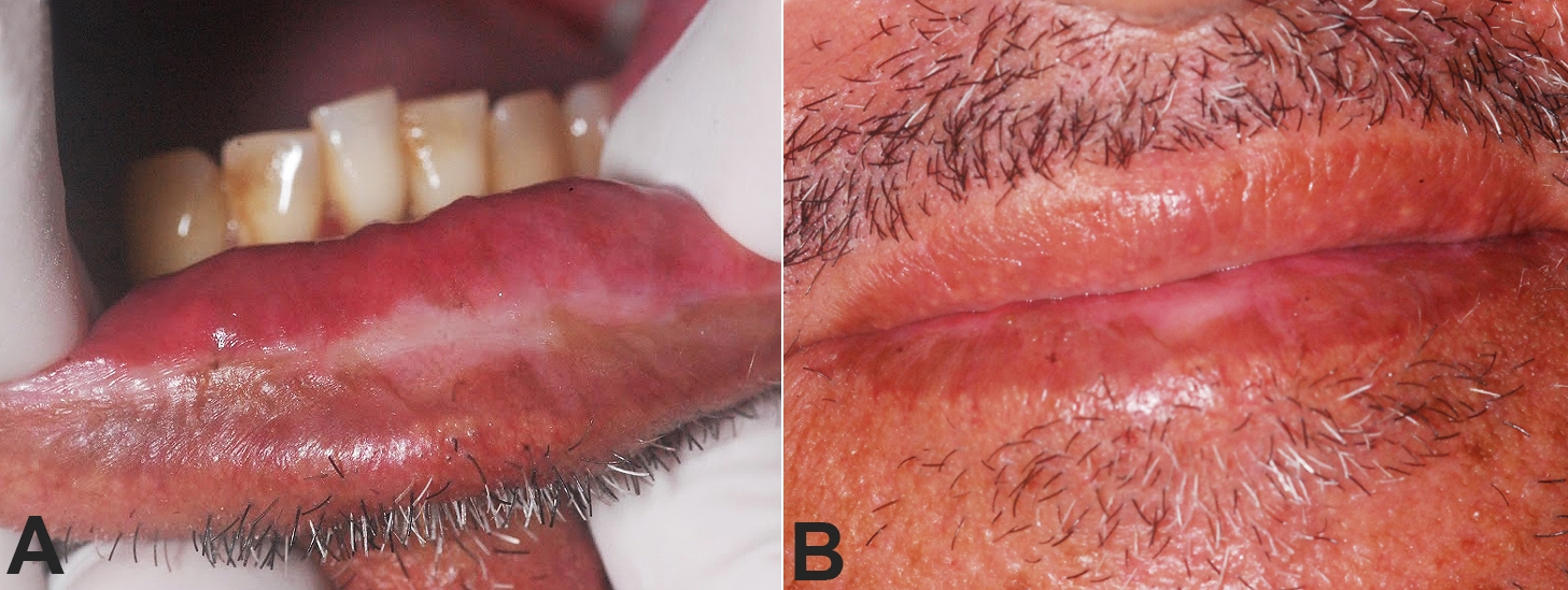 Clinical aspect of lower lip during follow-up. A, B – Complete regression of ulcerated and bleeding area 35 days after the biopsy.