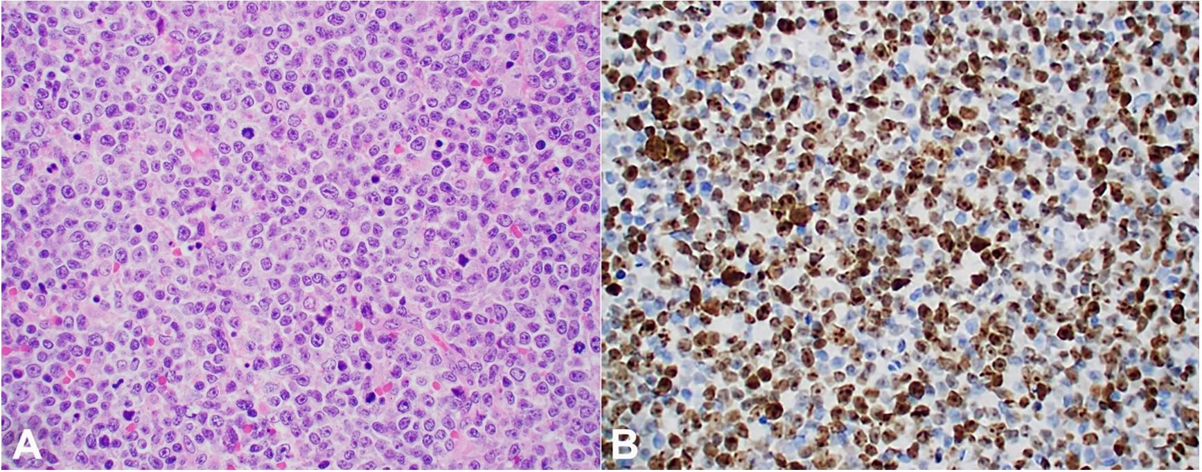 A – Photomicrograph of the supraclavicular lymph node showing sheets of intermediate-sized cells with prominent mitoses (H&E, 40X); B – Ki67 (MIB1) immunohistochemical stain, showing an estimated 60-70% proliferation rate (40X).