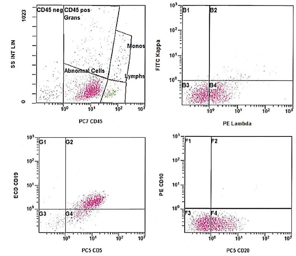 Flow cytometry of the lymph node, showing a CD19+ CD5+ CD10- lambda-restricted B-cell population. CD45 was aberrantly decreased. (SS: Side scatter; PE: Phycoerythrin; PC7: Phycoerythrin cyanin 7; PC5: Phycoerythrin cyanin 5; ECD: Electron coupled dye; B1-4, G1-4, F1-4: Plot quadrants).