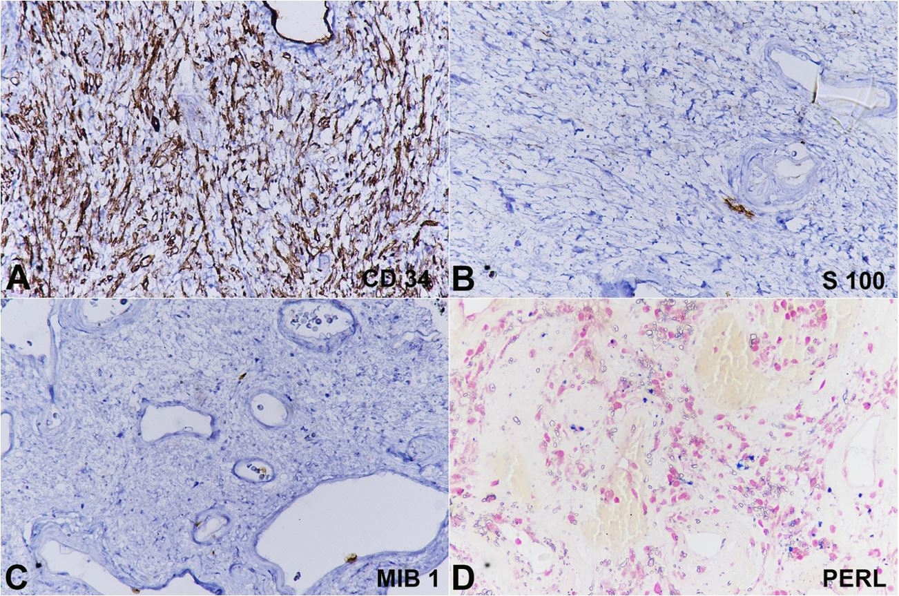 Photomicrographs of the tumor showing the stromal cells diffusely and strongly positive for CD34 (A), while negative for S100 (B). C – The MIB1with 1%-2% of positivity. D – Perl Prussian blue staining demonstrates intracytoplasmic and extra cellular iron deposition.