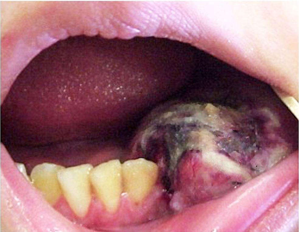 Intraoral examination shows a bulging lesion with central necrosis erupting the buccal and lingual cortical bone.