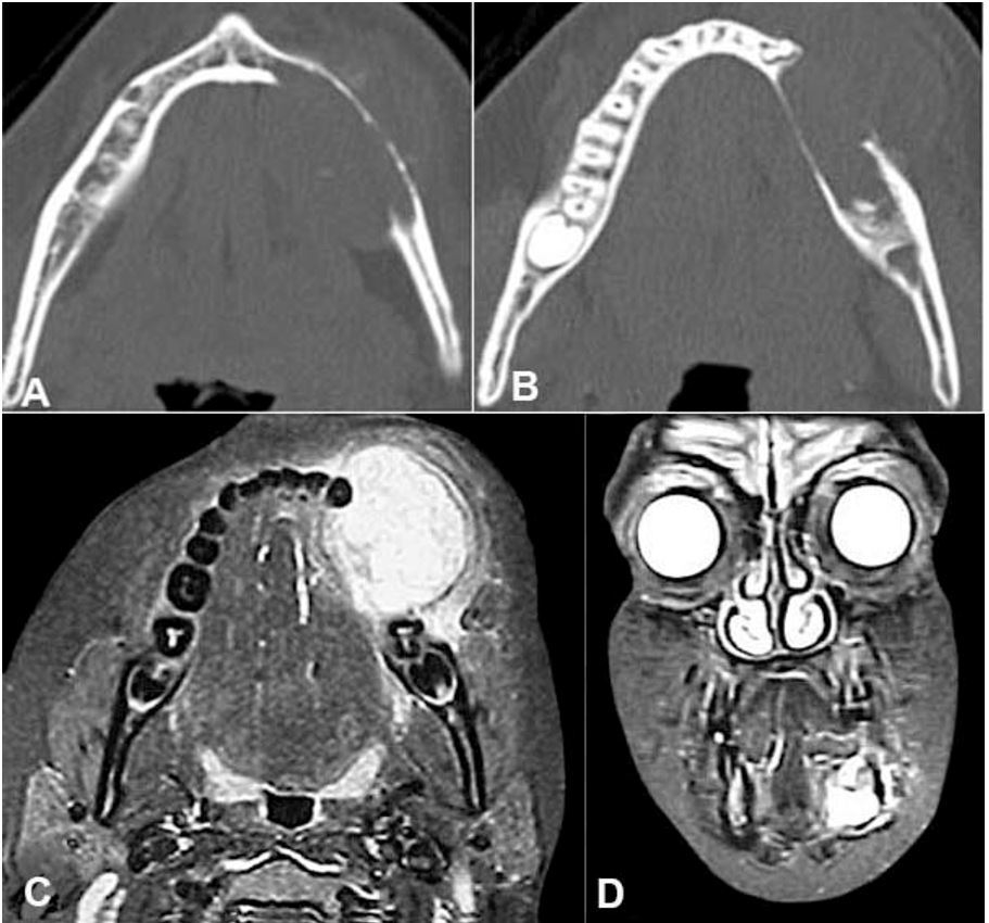 A and B - Axial computed tomography of the mandible revealing the rupture of the lingual and buccal cortical bone. C and D - Facial magnetic resonance imaging C axial plane and D coronal plane. Images weighted in T2 revealing the size and the projection of the buccal and lingual lesion.