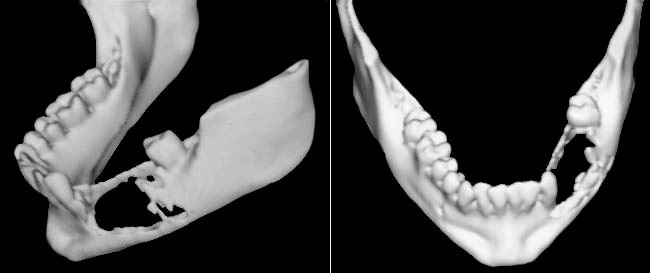 Three-dimensional reconstruction of the mandible illustrating the tumor extent with irregular bone resorption.
