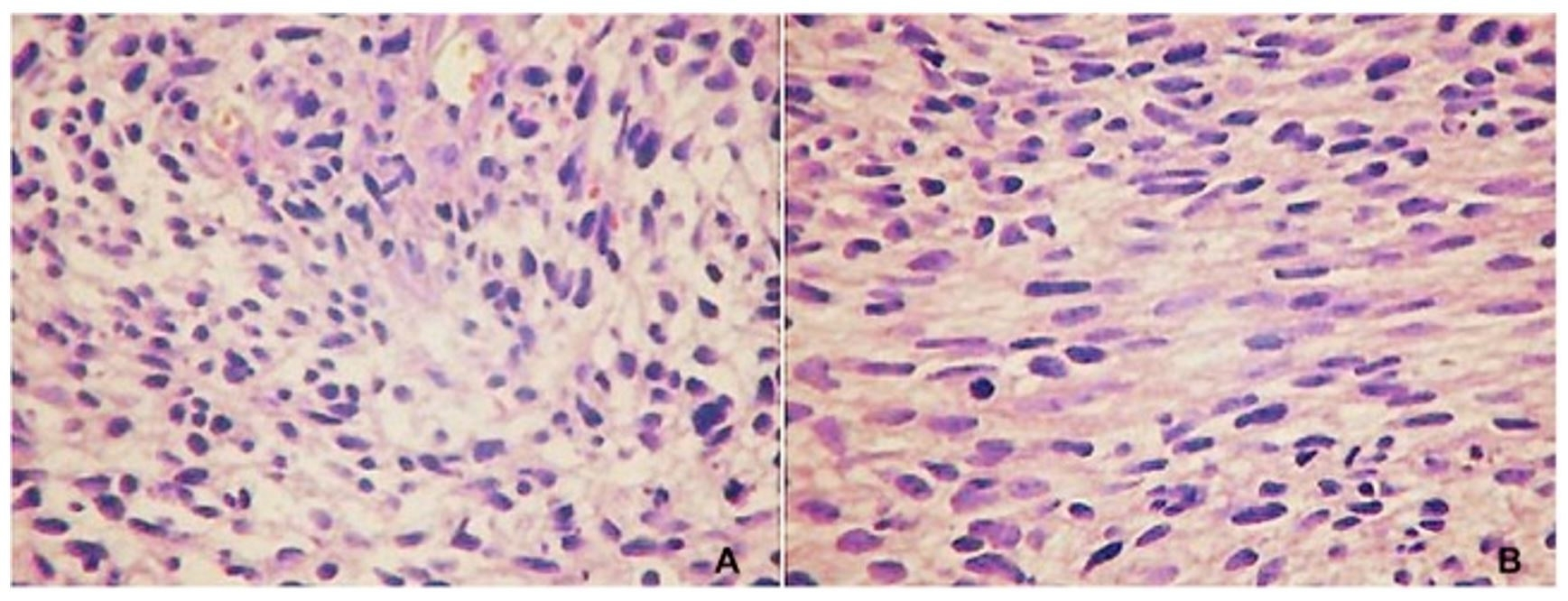 "Photomicrographs of the tumor. A - Cellular arrangements in loose bundles, perivascular disposition, and areas of myxoid aspect. The cells are elongated, with poorly defined borders, and the nuclei are equally elongated and atypical (HE, 400×). B - Cellular arrangements in bundles with occasional ""fishbone"" arrangement, fibrosarcoma-like. Note the presence of mitoses (HE, 400×)."