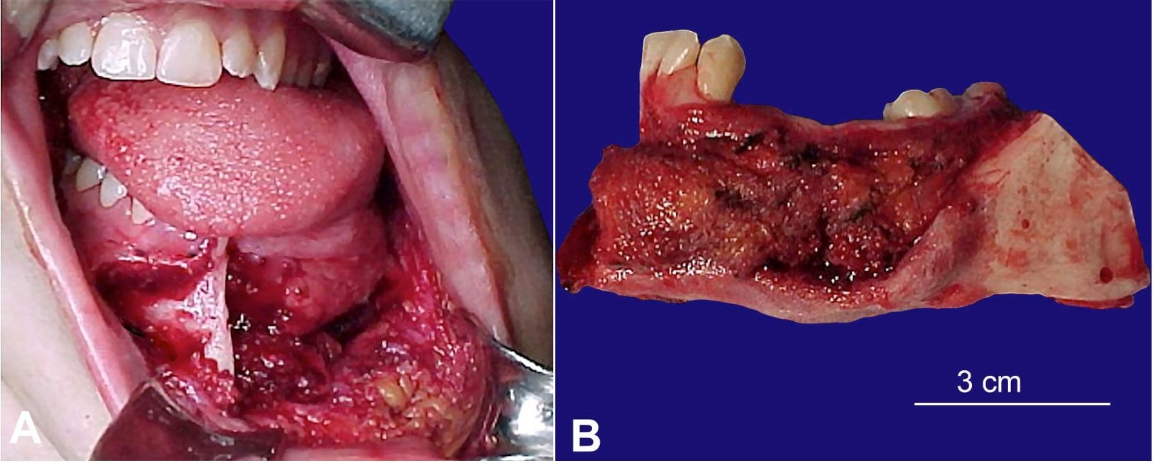 A - Intraoperative view of the segmental mandibulectomy. B - Resected surgical.
