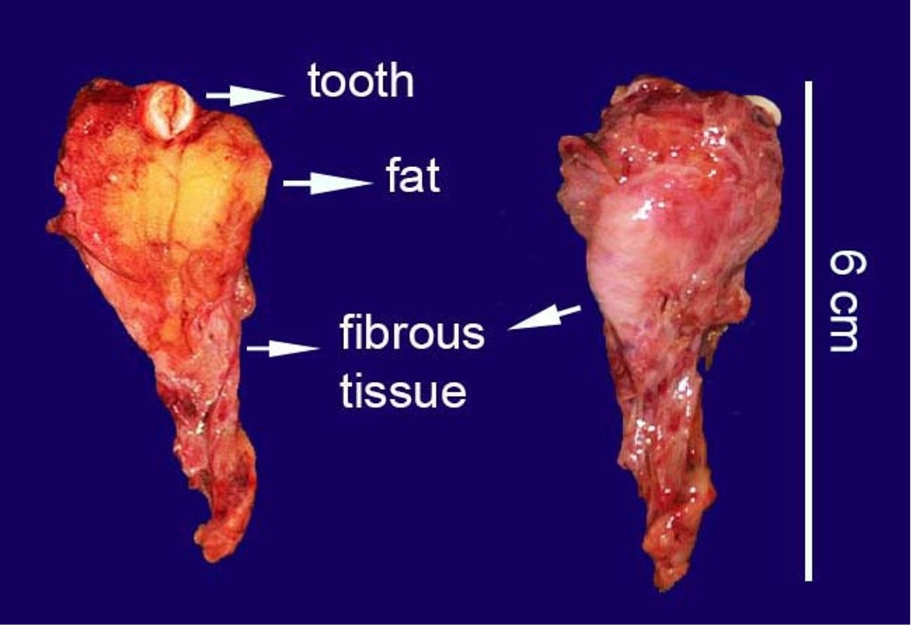 Gross view of the surgical specimen, ventral, and dorsal views are showing fat, fibrous tissues, and a tooth.