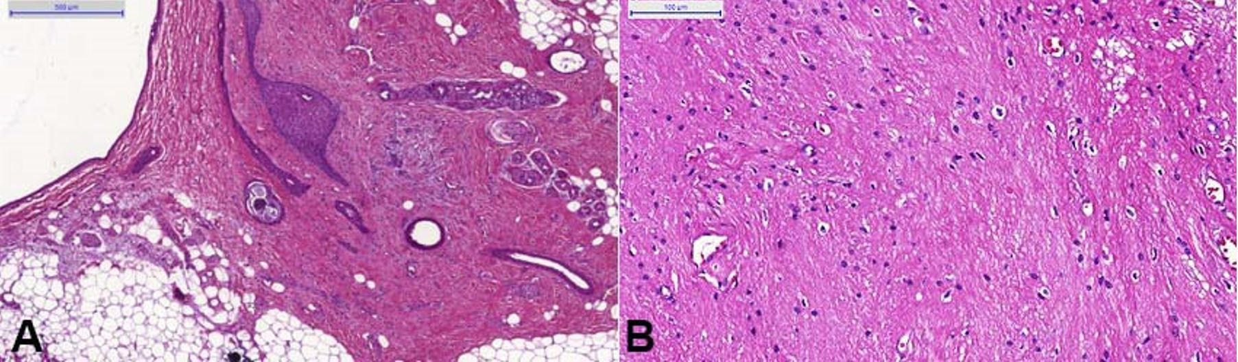 Photomicrographs of the surgical specimen. A – presence of mature, adult-type tissues - skin with cutaneous appendages, connective, and adipose tissues; B – neural component, predominantly composed of glial cells and neuropil.