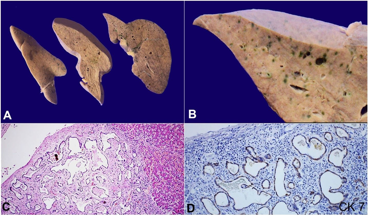 A and B - Cut surface of the liver show presence of multiple bile stained lesions measuring 3 to 15 mm in diameter in subcapsular location. B A closer view of the subcapsular bile stained lesions; C and D – Photomicrographs of the liver shows mis-shaped dilated bile ducts lined by cuboidal cells, embedded in a fibrotic stroma (H&E, 200X) and cuboidal cells lining the ducts show cytoplasmic staining for Cytokeratin 7.