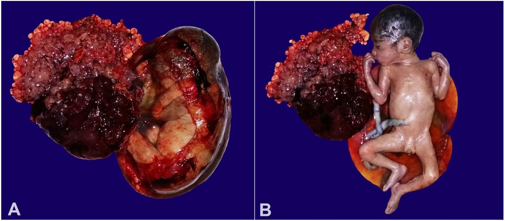 Gross view of the - A – Placenta with villi; B – Fetus with normal phenotype.