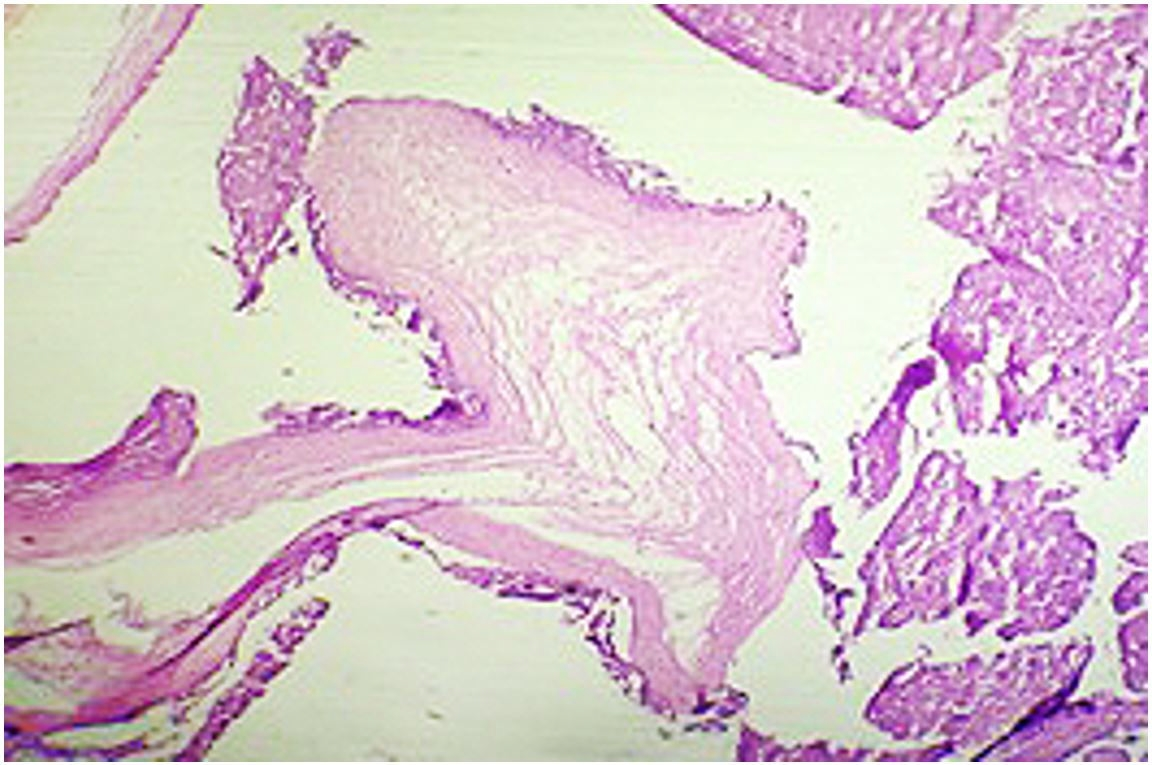 Photomicrograph of the placenta showing molar villi and a dividing membrane.