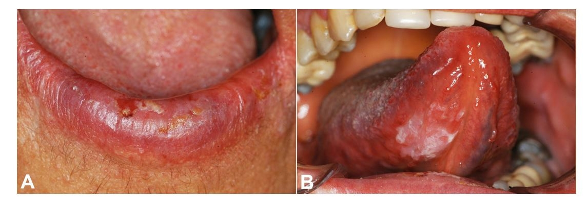 Gross view of the lesions at the time of diagnosis. A - Ulcerated lesion on the lower lip. B - White patch on the ventral surface of the tongue.