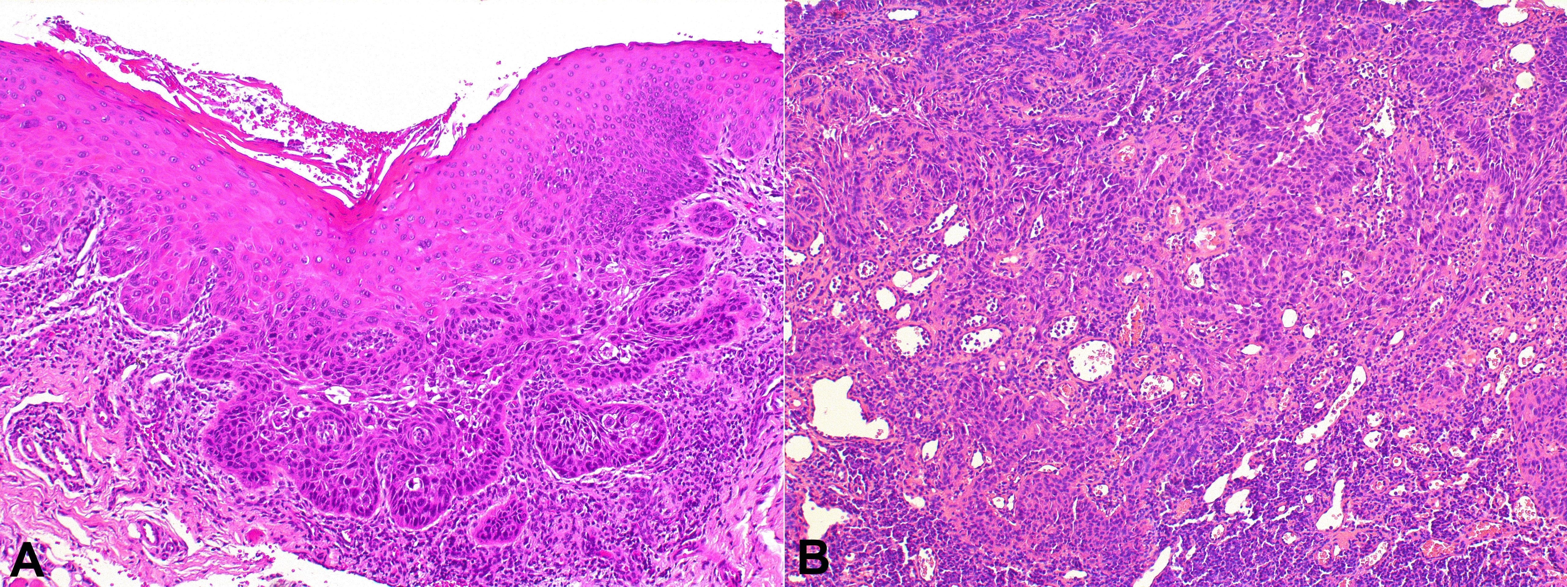 Histopathological aspects of squamous cell carcinoma. A - Microinvasive tumor of the tongue. B - Tumor cells in the connective tissue of the lower lip.