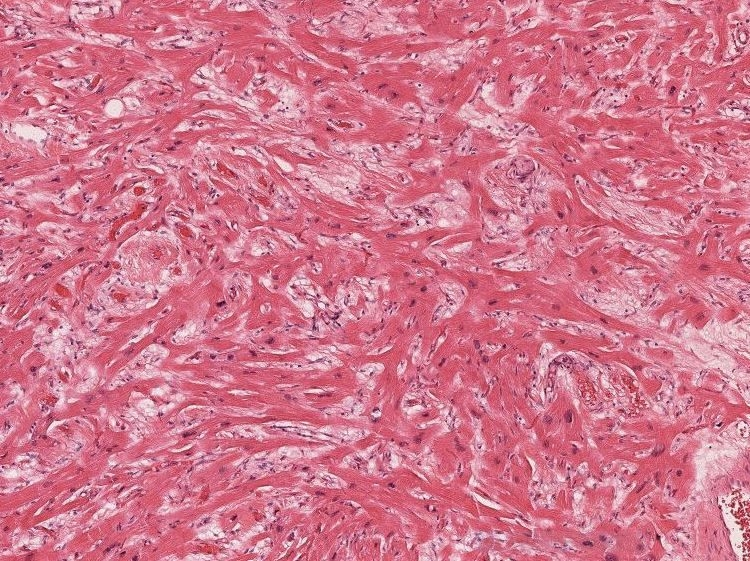 Microscopic examination revealed myocyte disarray with branching myocytes maloriented in different directions, associated with mild interstitial fibrosis (H&E, 40X).