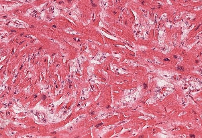 Some areas of myocyte hypertrophy and myocyte disarray had less interstitial fibrosis (H&E, 100X).