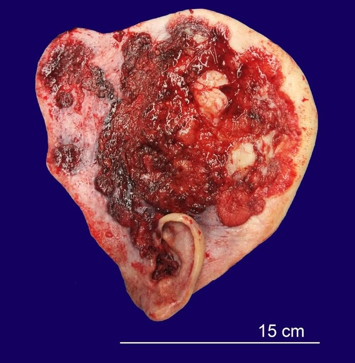 Surgical specimen with residual BCC and resistant areas. Almost all the specimen was occupied by a hemorrhagic neoplasm, partly flat and partly protruding, with 20 × 19.5 cm, which involved the auditory canal.