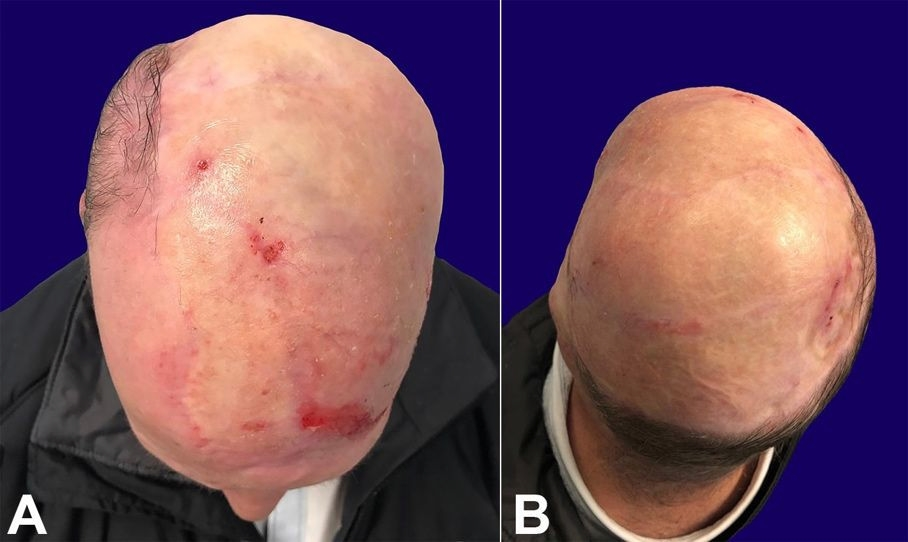 Postoperative gross view (A and B). The patient received full-thickness skin grafts to cover the right scalp and the external auditory canal, shown here at 10 months (A and B) after surgery. Note the marked atrophy of the muscle, closely resembling the natural thickness of the native scalp.