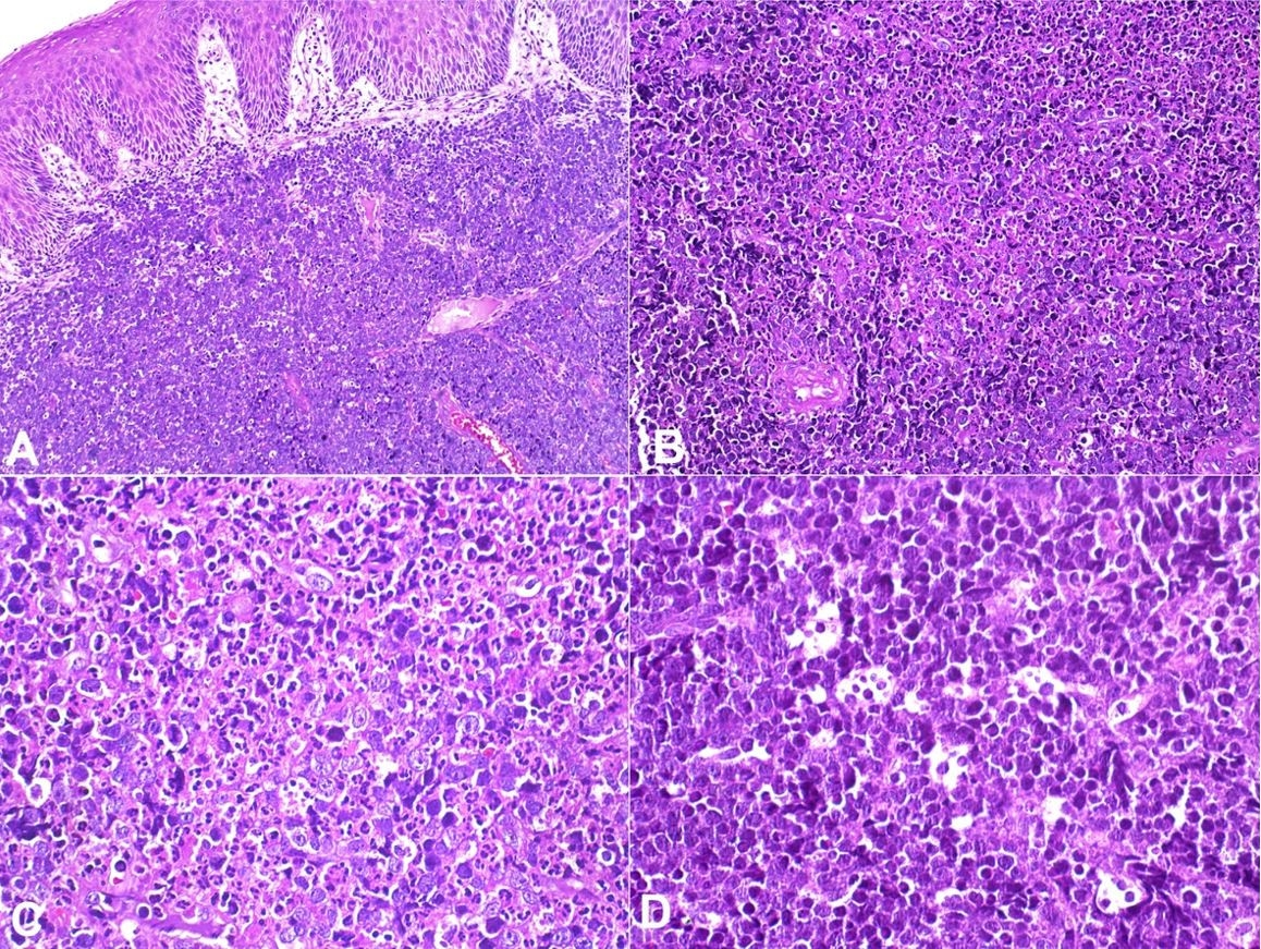 "Histopathological features of sporadic Burkitt lymphoma. A, B – diffuse proliferation of lymphoid cells, with scarce cytoplasm, and round nuclei (H&E, A:10x, B:20x); C – The lymphoid cells are medium sized with multiple and single evident nucleoli, nuclear pleomorphism, numerous mitotic and apoptotic figures (H&E, 40x); D – The tumor cells and tingible body macrophages showing a ""starry sky"" pattern; the lymphoid cells show fine, granular and dense chromatin (H&E, 40x)."