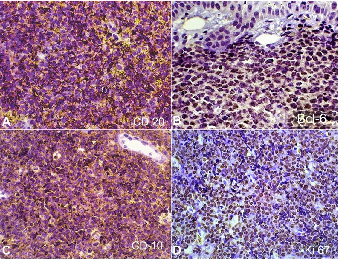 Immunohistochemical features of sporadic Burkitt lymphoma. Most tumor cells showed positivity for CD20 (A), Bcl-6 (B), CD10 (C), and the proliferation index assessed by Ki-67 near to 100% (D) (A-D: IHC, 40x).