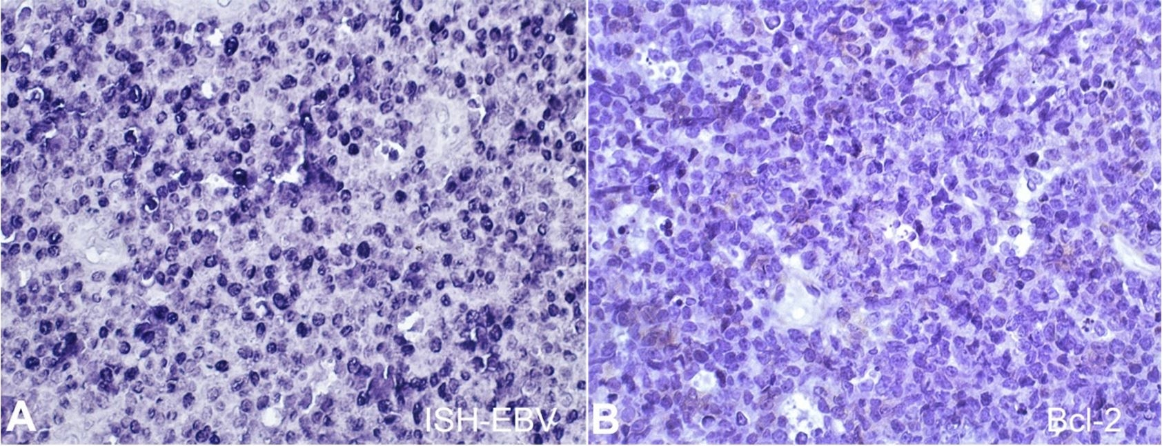 In situ hybridization and immunohistochemical features of sporadic Burkitt lymphoma. A – The tumor was EBV positive (ISH-EBV, 40x); B – Bcl-2 was negative (IHC, 40x).