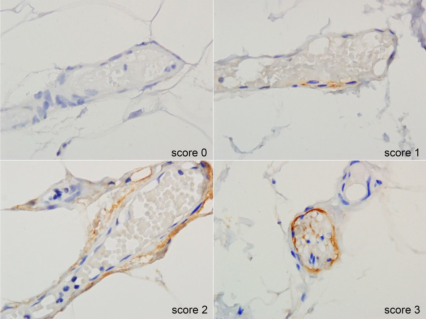 Scoring of IHC PAI-1 expression in vascular tissue.