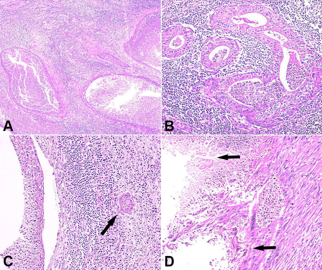 Photomicrographs of the tumor. A                    – Multiple epithelial cysts and surrounding lymphoid rich stroma (H&E, 100X); B                    – Epithelial islands showing bilayered epithelium of oncocytic and basal cells (H&E, 200X); C and D                    – Infiltrating atypical squamous cells showing nuclear atypia, reactive stroma and foci of necrosis (H&E, 400X). H&E = hematoxylin and eosin.