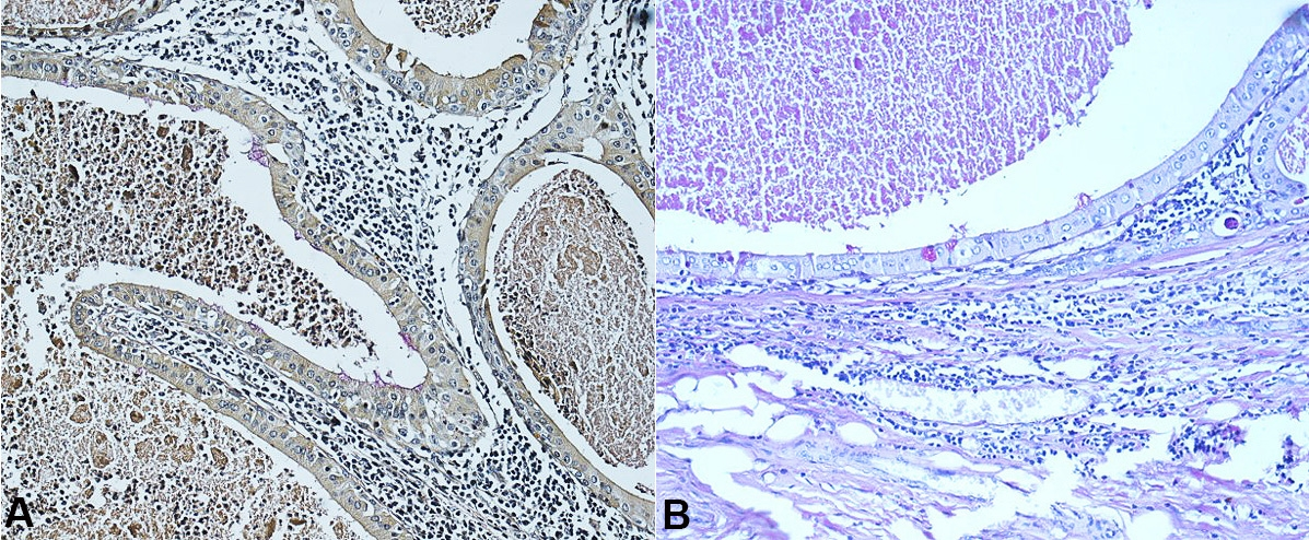 Photomicrographs of the tumor. A and B – The presence of intracellular mucin and intermediate cells (A – Mucicarmine, 400X; B – PAS, 400X). PAS = periodic acid-Schiff.