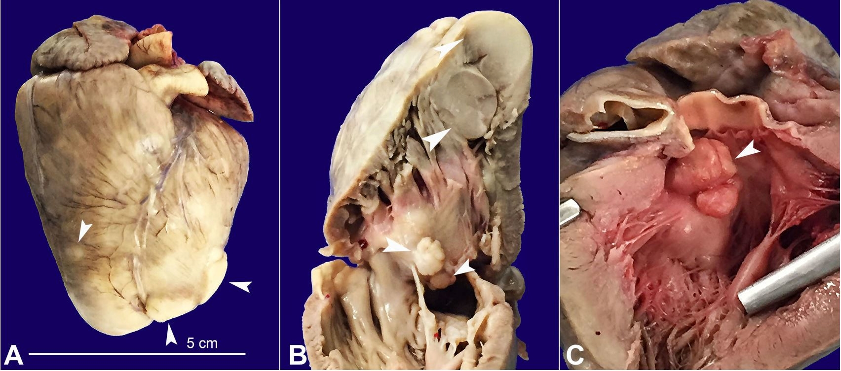 Gross view of the heart. A - Anterior face of the heart showing several whitish nodules (arrowheads); B - Right ventricular outflow tract with some of the nodules represented on the cut surface (arrowheads); C - Left ventricular outflow tract evidencing subaortic obstruction by the largest rhabdomyoma of the interventricular septum (arrowhead).