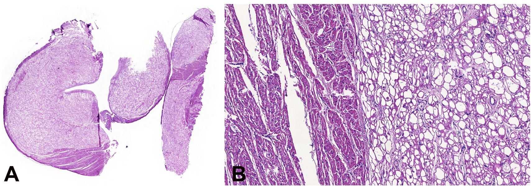 "Photomicrograph of the heart. A - Panoramic view of cardiac rhabdomyomas represented by large and clear cell nodules (HE 1x); B - Rhabdomyoma composed of a proliferation of large and vacuolated cells with a centrally placed nucleus and cytoplasmic strands extending to the periphery of the cell – ""spider cell"" (HE 10X)."