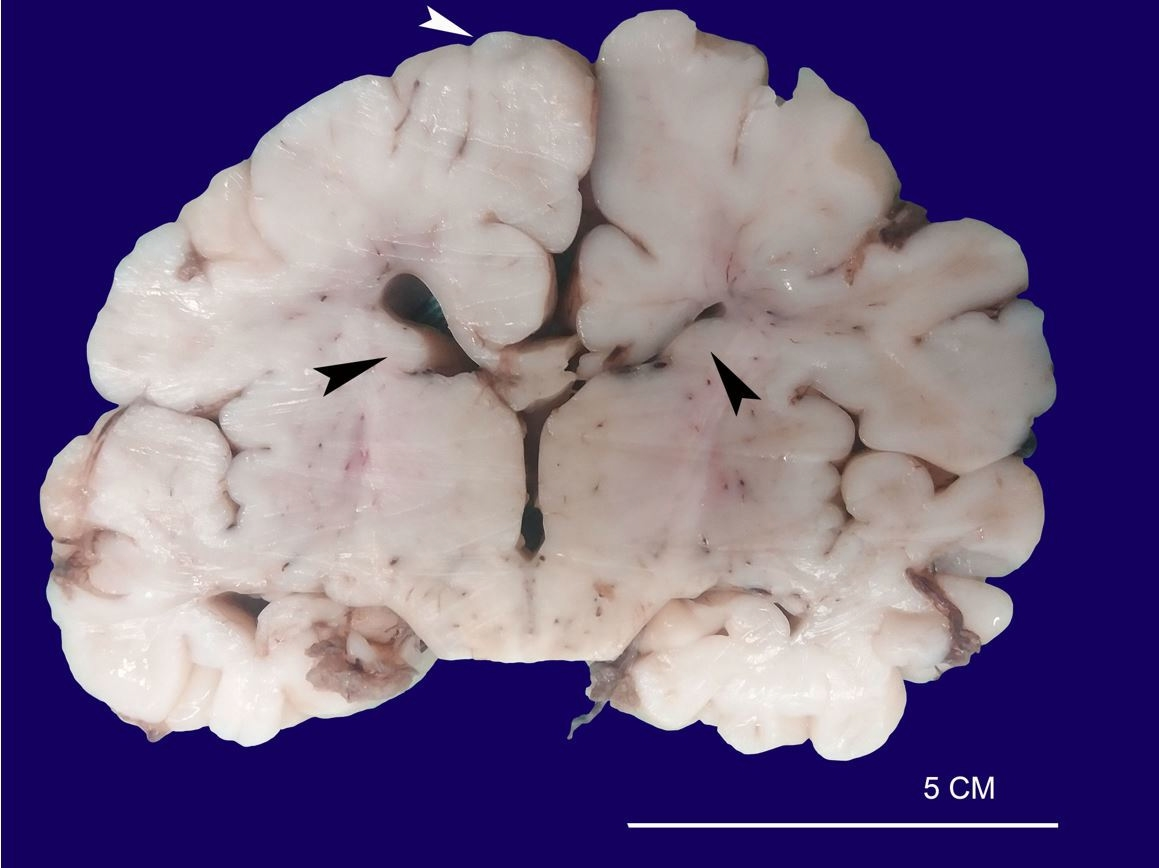 Macroscopic aspect of the brain showing cortical tubers (white arrowhead) and subependymal nodular lesions arising in the walls of the lateral ventricles (black arrowheads).