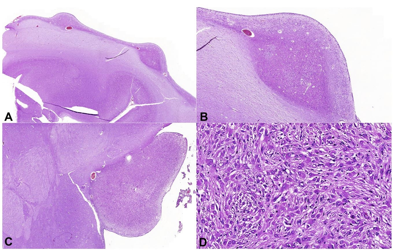 Photomicrographs of the brain. A and B - Subependymal nodules (A, HE 1X; B, HE 3X), comprised by a proliferation of neuronal cells and large and atypical glial cells; C - Large subependymal lesion (HE 1.44X), comprised by the proliferation of large cells of eosinophilic cytoplasm with moderate pleomorphism (D, HE 20X).