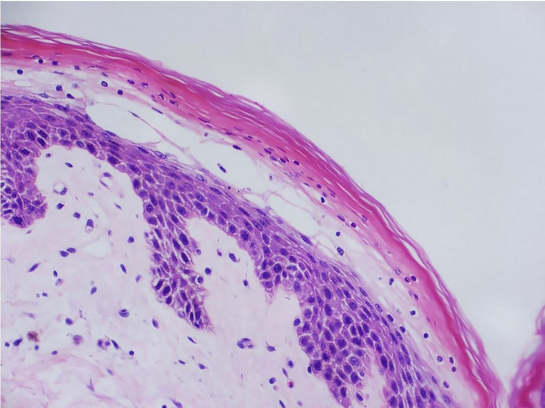 Photomicrograph of the skin showing spongiosis and parakeratotic hyperkeratosis in the upper layer of the epidermis with necrosis, loss of the granular layer, vacuolized and dyskeratotic keratinocytes, compatible with necrolytic nigratory erythema (H&E, original magnification ×20).