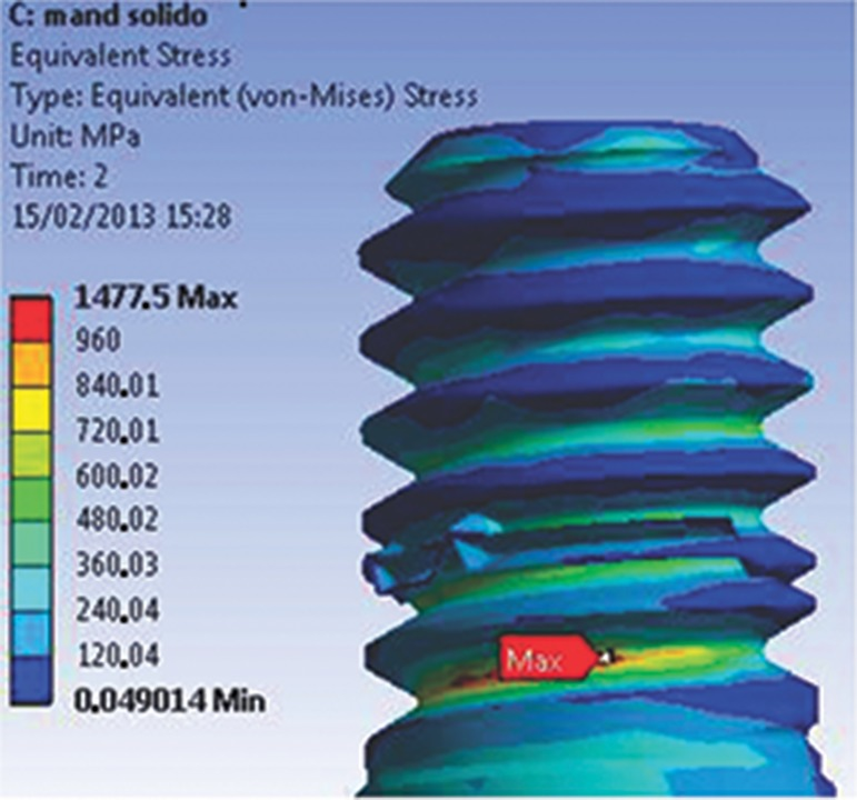 Maximum stress found at R1 (abutment-retaining screw), 2 s, for the M1 model.