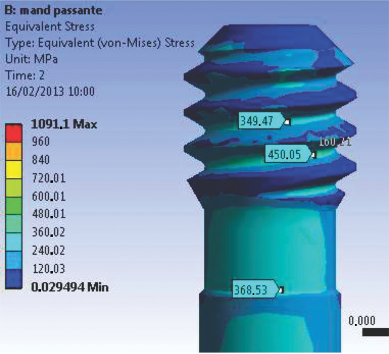 Abutment-retaining grooves (M2), presenting stress concentration values lower than σy