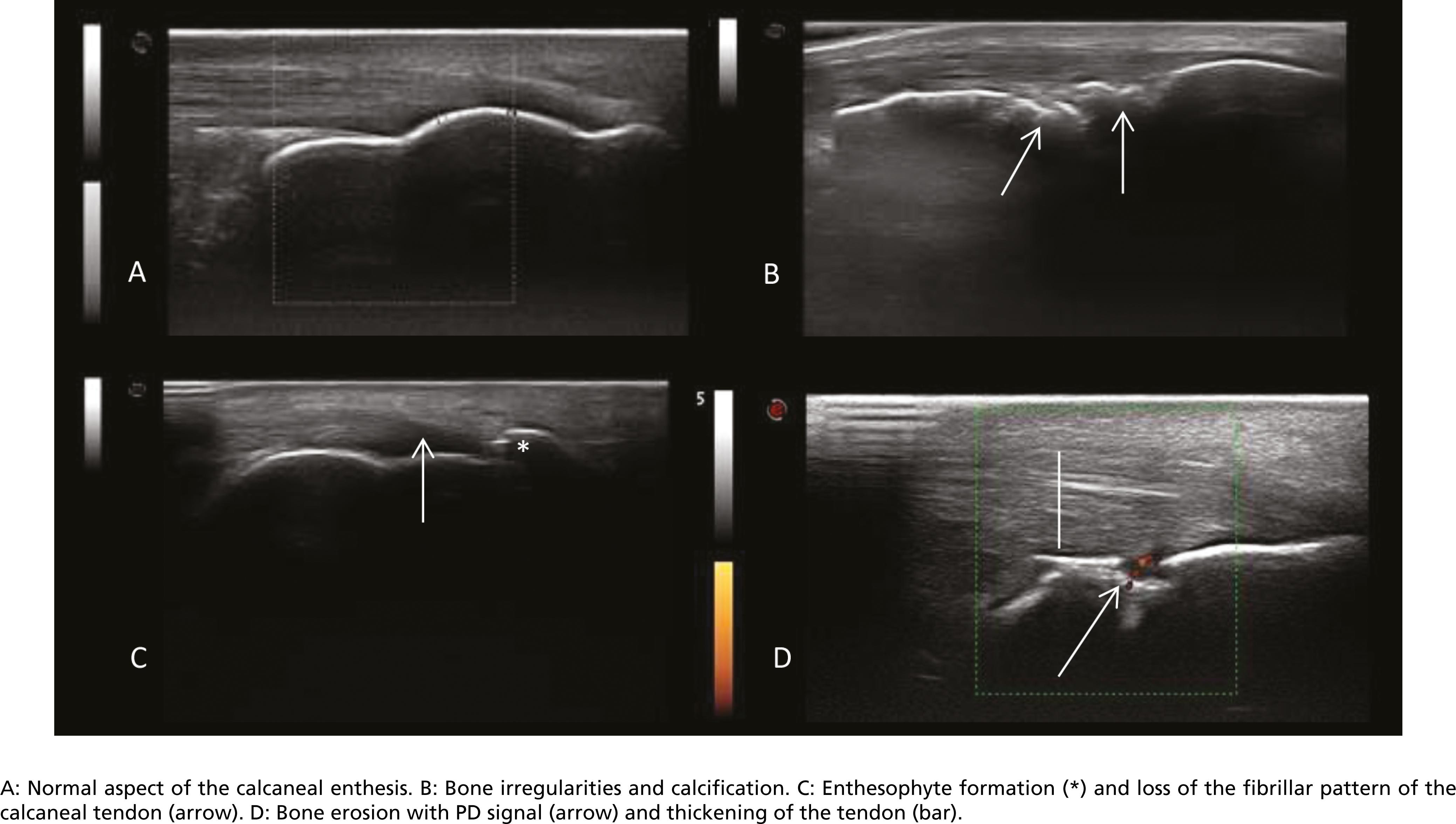 Ultrasound images of the calcaneal enthesis.