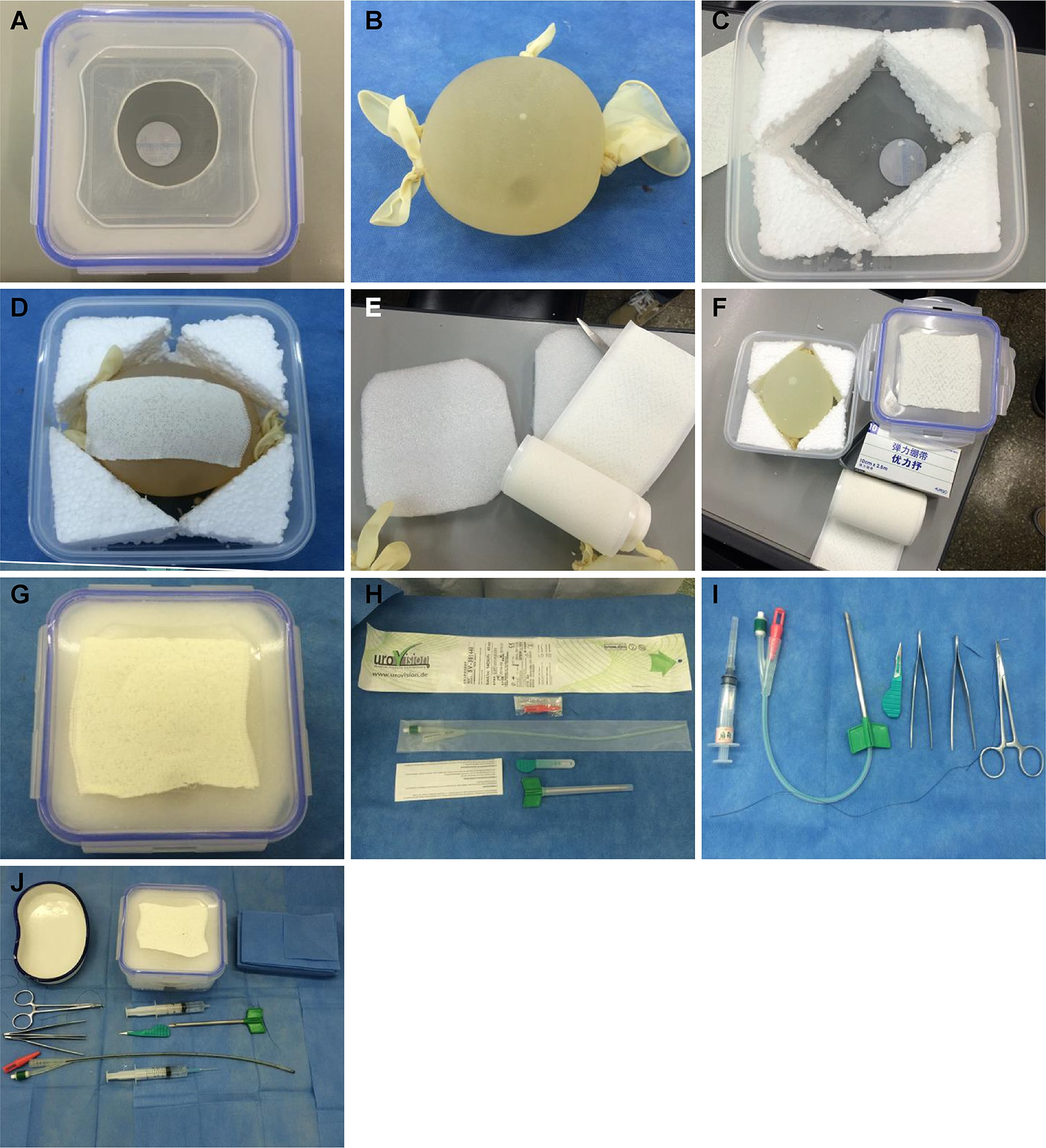 All equipment used. Figure 1A. A circular hole with a 6-cm diameter is created in the center of the microwave food container lid. Figure 1B. Large, sterile latex glove filled with sterilized water + iodine, fastening five fingers and cuff with rubber bands to create a spherical water bladder. Figure 1C. Styrofoam is used to fill the surrounding space in the microwave food container. Figure 1D. Water bladder is placed in the middle of the microwave container and covered with adhesive bandage to increase puncture resistance and prevent bursting. Figure 1E. Top of the water bladder is covered with Styrofoam to simulate the uppermost layer of the abdominal wall. Figure 1F. Surface of the microwave container is covered with adhesive bandage to simulate the skin surface. Figure 1G. Microwave container is closed tightly to form a simulation model for suprapubic paracentetic cystostomy. Figure 1H. Obturator at the urinary catheter end is used to close the end of the urinary catheter to allow monitoring of the effluent. Figure 1I. A 5-ml syringe simulates local anesthesia to the skin and is used to inject water into the bladder through the urinary catheter for fixation. Figure 1J. Needle holder, toothed forceps, angular needle, and silk thread are used to suture and fix the urinary catheter.