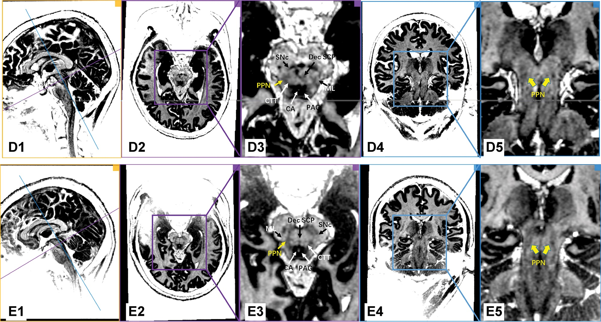 7.0T ultrahigh-field MRI scans using the MP2RAGE sequence in the PD patients (Patients D and E). Every row represents the images of the same PD patient. The first column shows the orthographic views for every patient. The two vertically intersecting lines (blue line and purple line) in the first column represent the two planes in other columns (the plane of columns 2/3 with purple border and the plane of columns 4/5 with blue border). The PPN was delineated as a region of intermediate signal intensity when compared to the surrounding structure, such as the hypo-intensity of the PAG and the hyperintensity of the neighboring triad of white matter tracts. Dec SCP: decussating superior cerebellar peduncle, ML: medial lemniscus, CTT: central tegmental tract, SNc: substantia nigra pars compacta, CA: cerebral aqueduct, PAG: periaqueductal gray, PPN: pedunculopontine nucleus.
