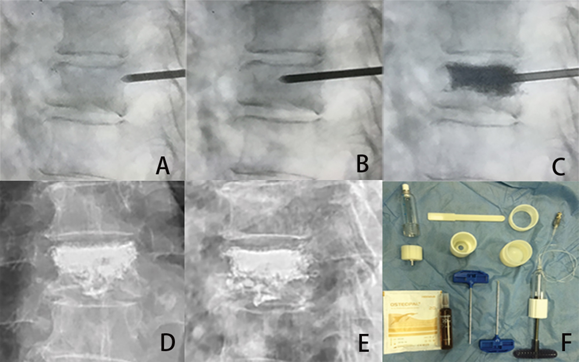 HPDS surgical procedure for the treatment of a 79-year-old female patient with T8 vertebral body fracture. A, A puncture needle enters into the fractured T8 vertebra via the left pedicle. B, Lateral radiograph showing the puncture needle tip in the anterior column of the vertebral body. C, High-viscosity bone cement is injected into the fractured vertebral body. The lateral radiograph shows the filling of the vertebral body with high-viscosity cement. D and E, Lateral and posterior-anterior X-ray films after the HPDS surgical procedure. F, The HPDS device and high-viscosity cement.