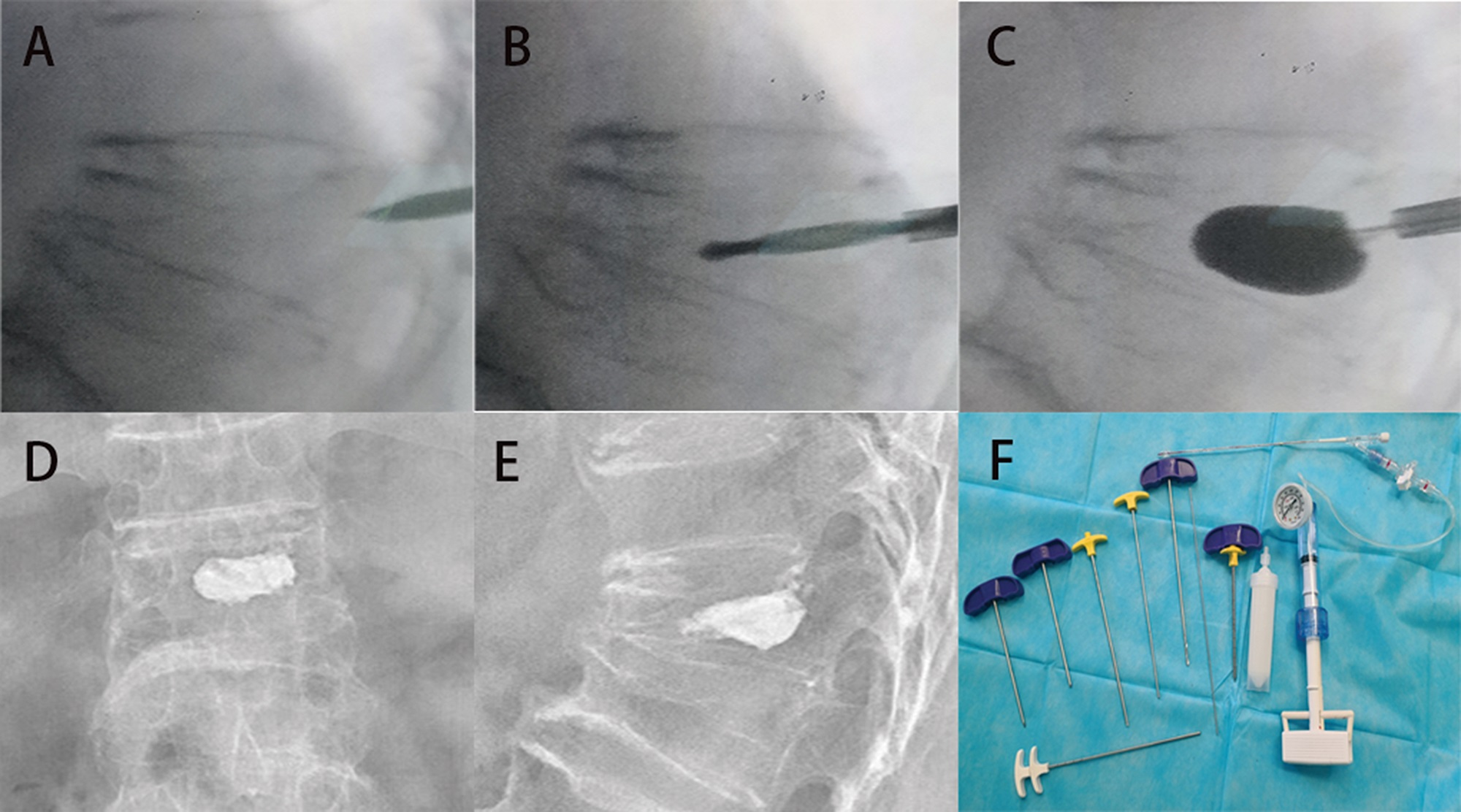 BTS surgical procedure for the treatment of a 75-year-old male patient with T12 vertebral body fracture. A, A puncture needle enters into the wedge T12 vertebra via the left pedicle. B, A bone drill was inserted in the fractured vertebral body to drill a circular hole as a working channel. C, An expandable cannula was inserted into the fractured vertebral body, and the balloon was slowly inflated. D and E, Posterior-anterior and lateral X-ray films after the BTS surgical procedure. F, The BTS instruments.